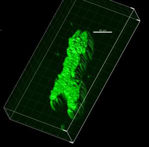 3D reconstructed fibril