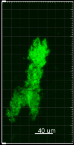 Confocal image of fibril
